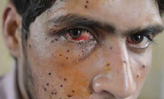 許多民眾在這次的軍民衝突中失去視力。