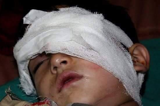 才5歲的小男孩,已失去一眼視力。